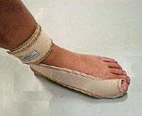 足・指関節サポーター 使用方法5