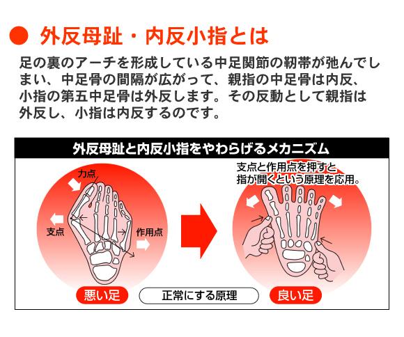 外反母趾・内反小指とは、足の裏のアーチを形成している中足関節の靭帯が弛んでしまい、中足骨の間隔が広がって、親指の中足骨は内反、小指の第五中足骨は外反します。その反動として親指は外反し、小指は内反するのです。